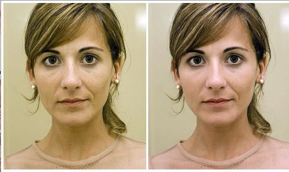 pictreat2   PicTreat: One Click Online Photo Retouching Service