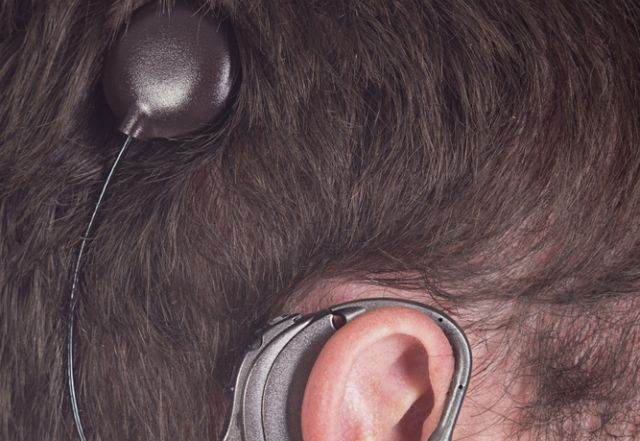 cochlear-implant