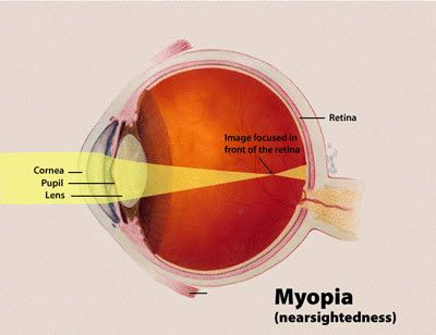 how-nearsightedness-works