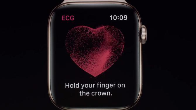 Apple Watch Serie 4: Der unbestrittene König der Smartwatches